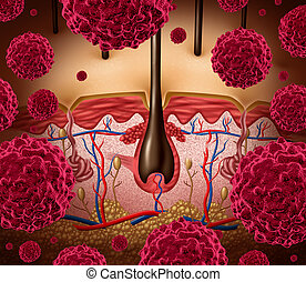 Skin Cancer - Skin cancer and melanoma medical concept as a...
