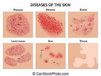 Skin diseases. Derma infection, eczema and psoriasis....