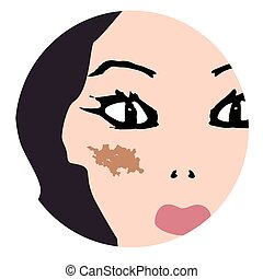 skin., pigmentation, tache, illustration, face., peau, ...