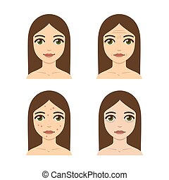 Skin problems illustration - Young woman with skin problems...