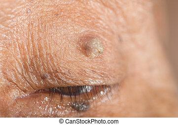 skin tag - close up of skin tag of left upper eyelid.