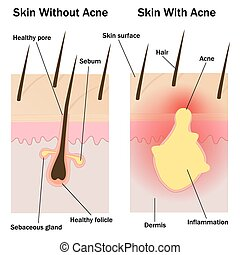 Skin with and without acne - Illustration of the skin with ...