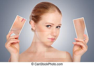skincare, skóra, trądzik, kobieta, piękno, pojęcie, młody