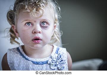 skrämd, litet, trist, flicka, mörbultat