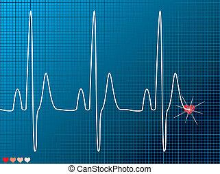 slå, hjerte, medicinsk, mørke