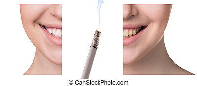 Smile before and after smoking.