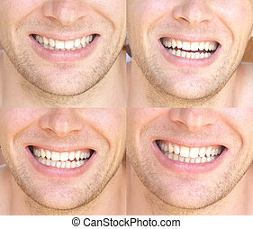 Smile Face Man with natural White Teeth Collage Dental...