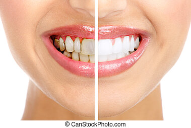 Smile. - Healthy beautiful smile. Dental health. Whitening.
