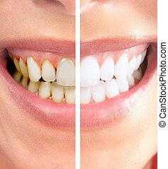 Smile. - Healthy beautiful smile. Dental health. Whitening.