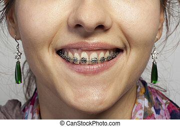 Dentures with braces - Smile of woman and Dentures with...