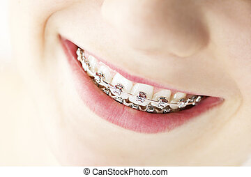 Smile with braces - Closeup on braces and white teeth of...