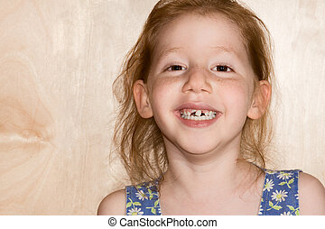 Smiling girl showing her fallen off snaggle teeth