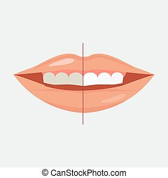 Smiling Mouth with Cleaning Teeth, Before and After Bleaching treatment design vector
