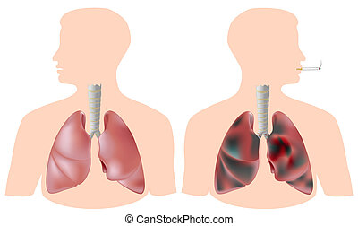 Healthy lung and smoker's lung with tar(black) and cancer, eps8