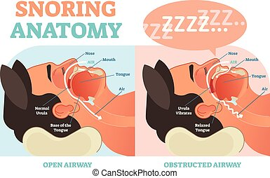 Snoring anatomy medical vector diagram with air passage. -...