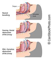 snurken, en, slaap, apnea, eps10
