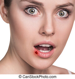 Sore on the female lips - Herpes on the female lips isolated...