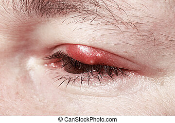 Sore Red Eye. Chalazion and Blepharitis. Inflammation