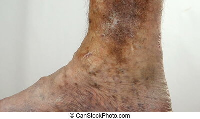 Sore spotty leg of person, suffering from blockage of veins, ulcers, dermatitis, eczema or other infectious diseases of dermatology. Upwards. Close-up. Indoors.