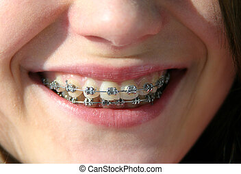 sorrizo, com, suportes, ligado, dentes