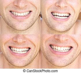 sorrizo, rosto, homem, com, natural, dentes brancos, colagem, saúde dental, conceito, e, felicidade, emoções