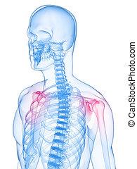 spalle, infiammato