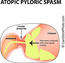 spasms of the pylorus. Pylorospasm. atonic. Pyloric sphincter of the stomach. Infographics. Vector image on isolated background.
