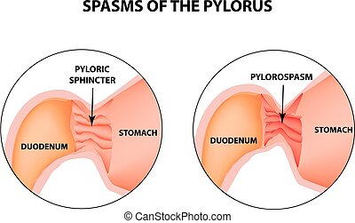 spasms of the pylorus. Pylorospasm. Spastic and atonic. Pyloric sphincter of the stomach. Infographics. Vector image on isolated background.