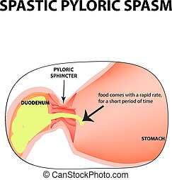 spasms of the pylorus. Pylorospasm. Spastic Pyloric sphincter of the stomach. Infographics. Vector image on isolated background.