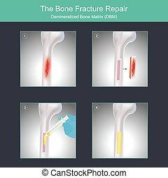specialised, surgery., exempel, material, ben, repair., ...