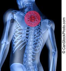 spina dorsale, dolore, scheletro, uomo, interasse