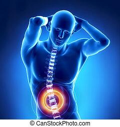 spina, problema, umano, raggi x, lombare
