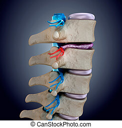 Spinal cord under pressure of bulging disc