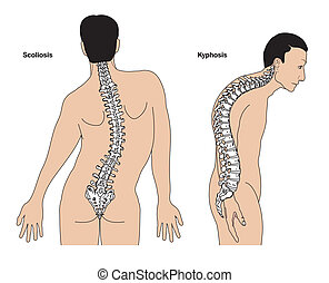Spinal deformities - Deformities of the spine