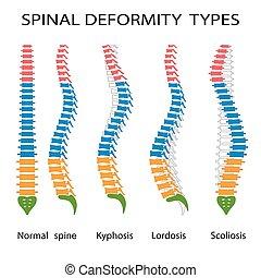 spinal, difformité, types.
