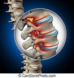 spinale, stenosi, concetto, medico
