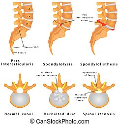 Spine Fracture. Spondylolysis (Spondylolisthesis) is a...
