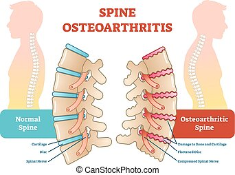Spine osteoarthritis anatomical vector illustration diagram