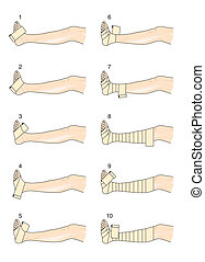 Spiral bandage technique
