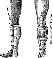 Splint Applied to a Fractured Leg, vintage engraving -...