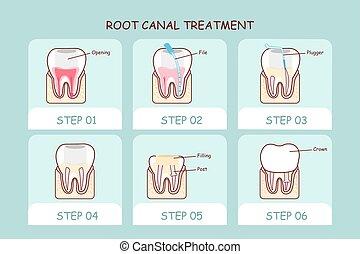 spotprent, tand, wortel, vaart, behandeling