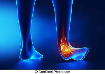 sprained, knöchel, blaues, röntgenaufnahme