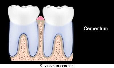 stadien, von, periodontal krankheit