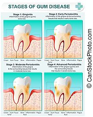 Vector detailed illustration of the stages of gum disease. Image of teeth and gums in a section of bone tissue with affected areas and description.