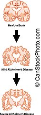 Stages of Alzheimers disease