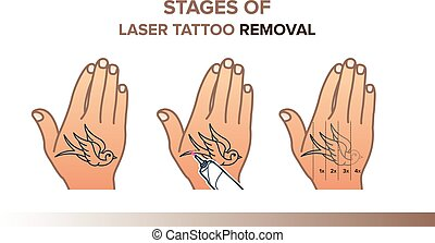 Stages of laser tattoo removal illustration