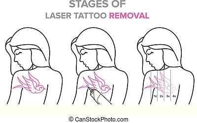 Stages of laser tattoo removal, vector illustrations