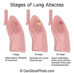 Stages of Lung Abscess - Illustration of the three stages of...