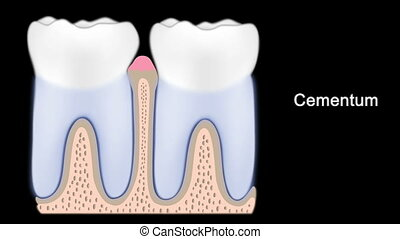 External anatomy of tooth and stages of periodontitis
