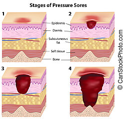 Stages of pressure sores, eps8